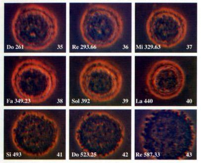 Cellula cancerosa Hela durante l'esperimento eseguito con lo xilofono